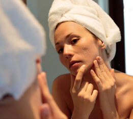 young woman looking at her acne scars in the mirror
